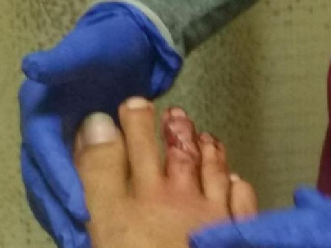 The damage: Tyler McQuillen's toes after a shark encounter. Picture: Imgur